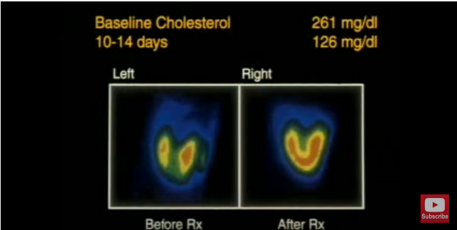 lower-your-cholesterol-without-pills