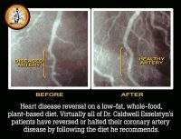 how to reverse heart disease without surgery or pills